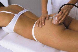 Фото - Вакуумный массаж от растяжек после родов
