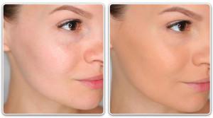 Фото - Подбор тонального крема для сухой кожи