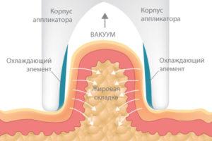 Как работает вакуумный массаж - Фото