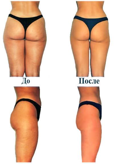 Фото - Вакуумный массаж ягодиц и ног до и после