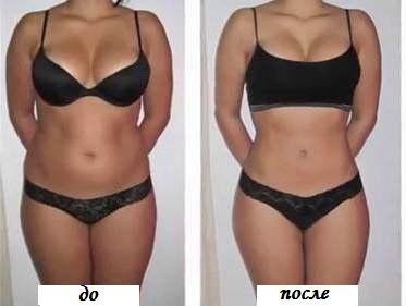 Фото - Вакуумный массаж до и после