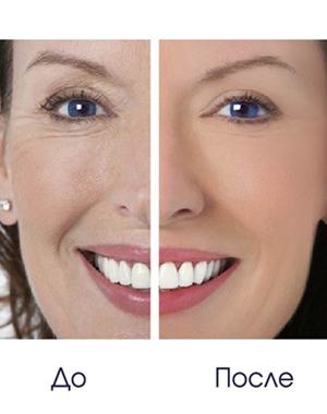 Фото - Вакуумный массаж лица до и после